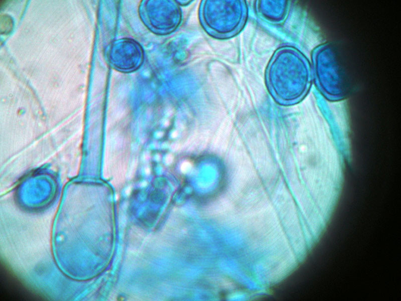mucor_racemosus_and_basidiospores